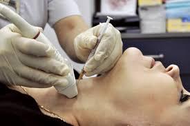 Как делают пункцию щитовидной железы